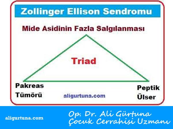 Zollinger Ellison Sendromu nedir?