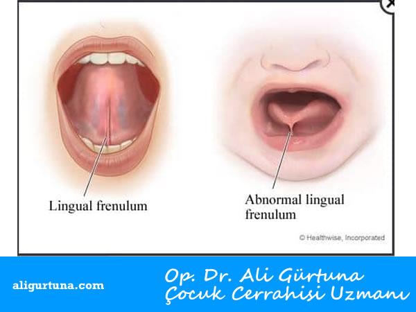 Bebeklerde Dil Altı Bağı Ameliyatı