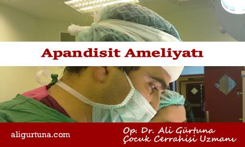Apandisit belirtileri ve ameliyatı