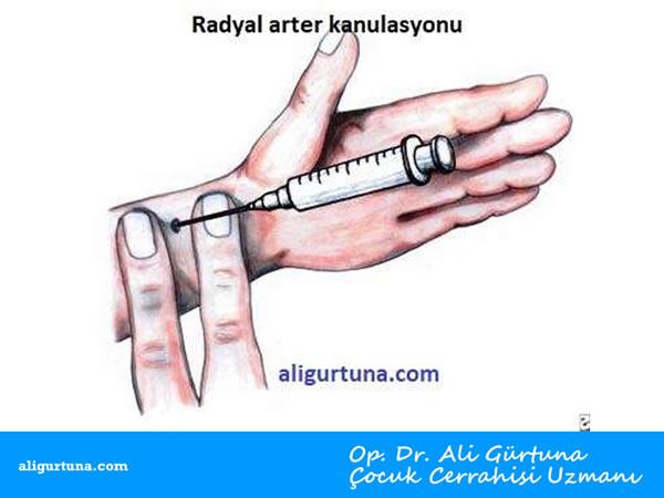 Radyal Arter Kanulasyonu