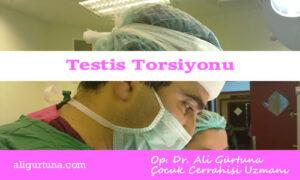 Testis torsiyonu belirtileri tedavisi