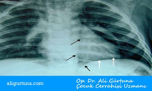 Çocuklarda spontan mediastinum akciğer grafisi