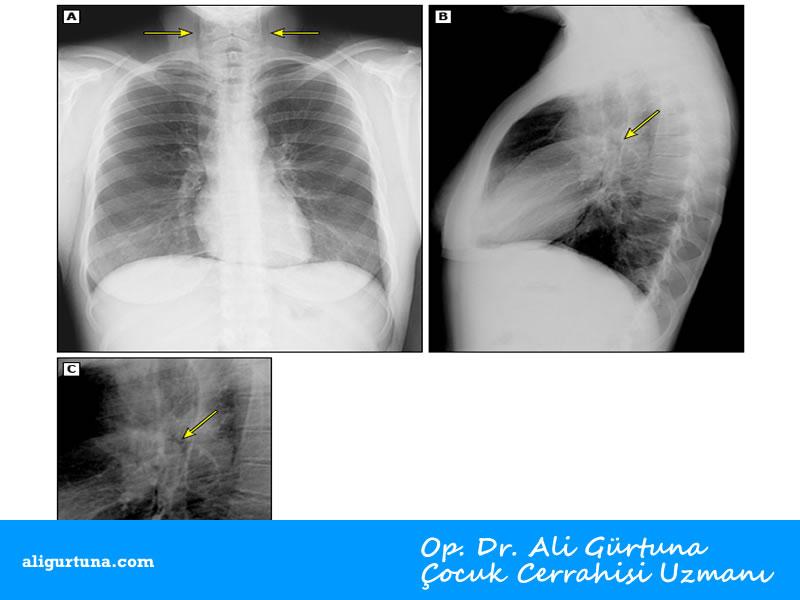 Çocuklarda spontan mediastinum akciğer grafisi: