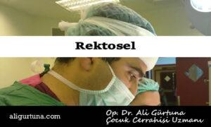 Rektosel nedir, nasıl tedavi edilir?