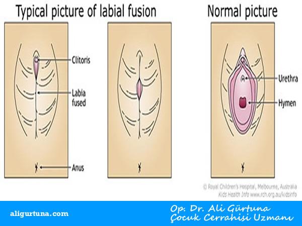 Labial Füzyon nedir (Genital yapışıklık tedavisi)